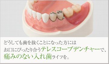 どうしても歯を抜くことになった方にはお口にぴったり合うテレスコープデンチャーで、痛みのない入れ歯ライフを。